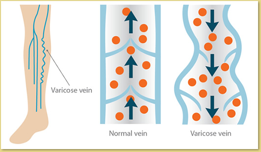 Illustration showing normal and varicose veins