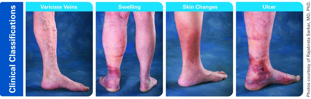 Venous Disease Progression