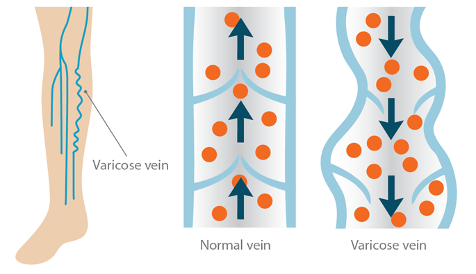 About Varicose Veins | Advanced Vein Center of Medford Oregon